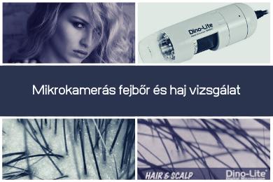 Mikrokamerás fejbőr és haj vizsgálat, Baja